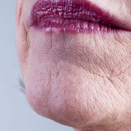 9051963 - close-up of mature woman mouth