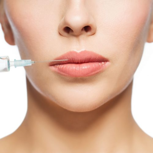 62831835 - people, cosmetology, plastic surgery and beauty concept - beautiful young woman face and syringe making injection for lips augmentation over white background