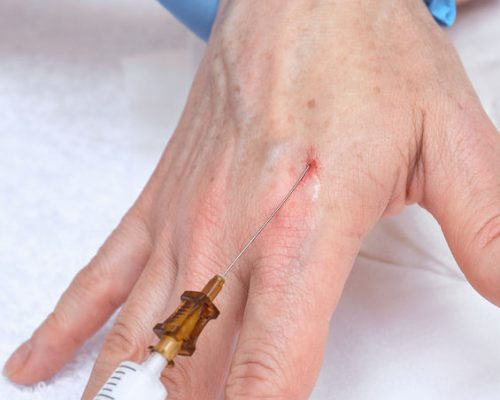 61038417 - anti-age injection therapy. hand rejuvenation